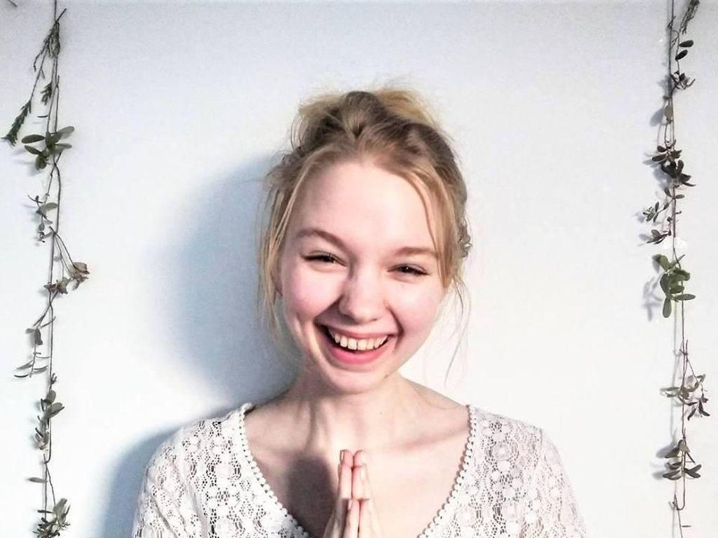 Penampilan Wanita yang Dua Tahun Tak Pernah Keramas Pakai Shampoo