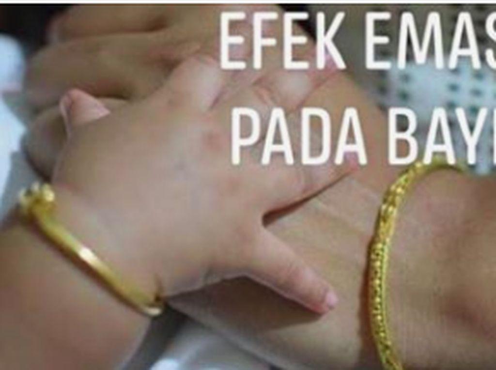 Viral Partikel Emas Perhiasan Bisa Menembus Kulit Bayi, Ini Kata Dokter