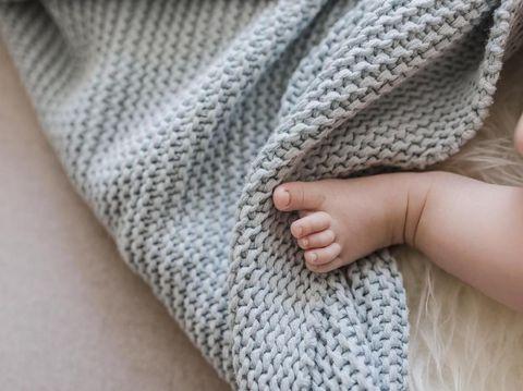 Cyclopia, Cacat Lahir Bermata Satu Dialami Bayi di Sumut