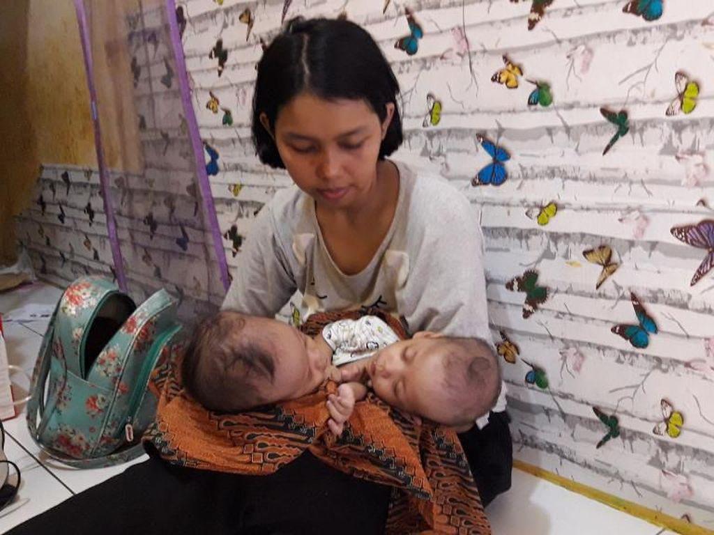 Menengok Rahman dan Rahim, Bayi Kembar di Bekasi yang Lahir Dempet