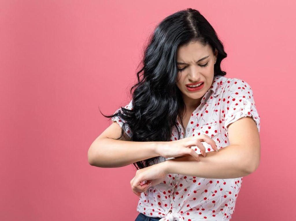 Orang dengan Darah Manis Lebih Sensitif Gigitan Serangga