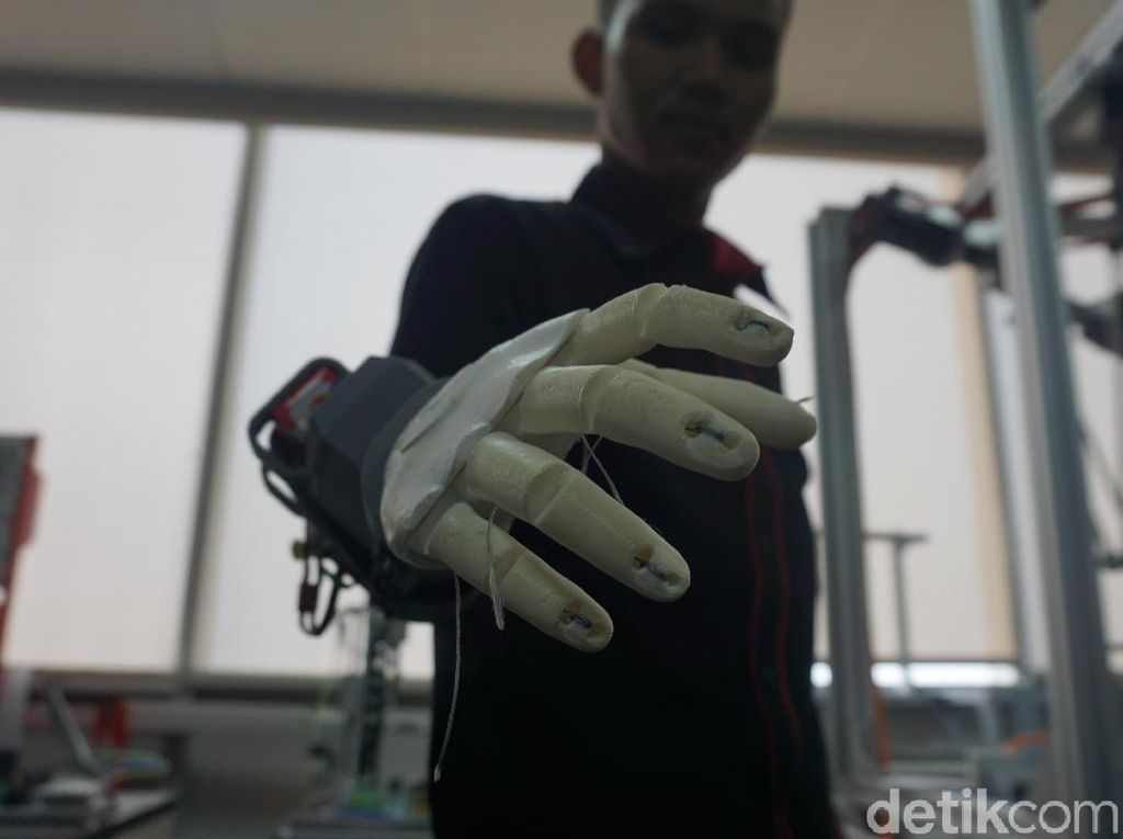 Foto: Penampakan Tangan Bionik Asli Tangerang yang Beneran Mirip Iron Man