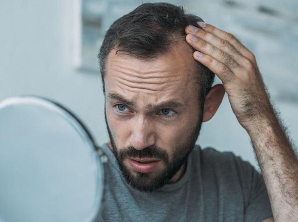 Banyak Pria Mulai Botak di Usia 20-30 Tahun, Mungkin Ini Sebabnya