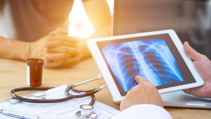 Ilustrasi kerusakan paru-paru. Foto: iStock