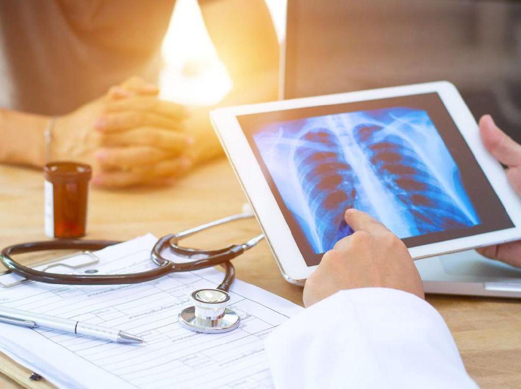 Penyakit TBC: Gejala, Pengobatan, dan Pencegahan Supaya Kasus Tak Meningkat