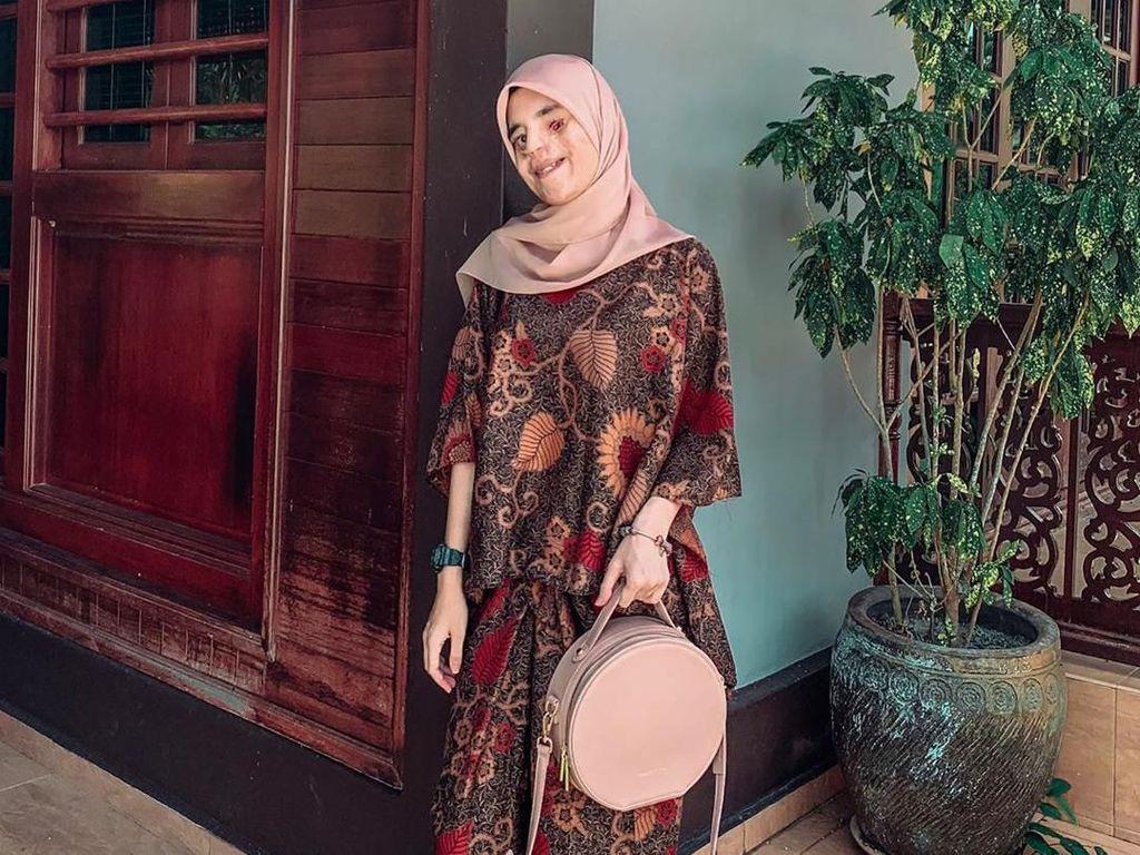 Mahasiswi yang Separuh Wajahnya Rusak Ini Viral, Tampil PD Foto #OOTD