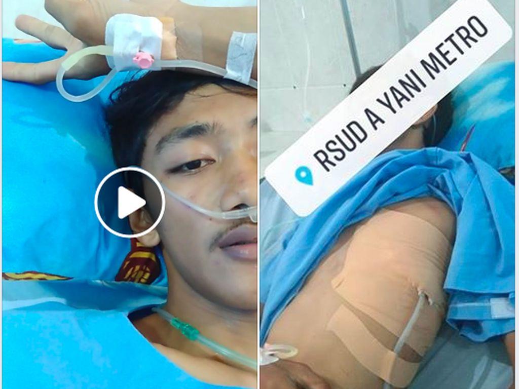 Viral Kisah Pemuda Paru-parunya Kolaps, Kapok Isap Rokok