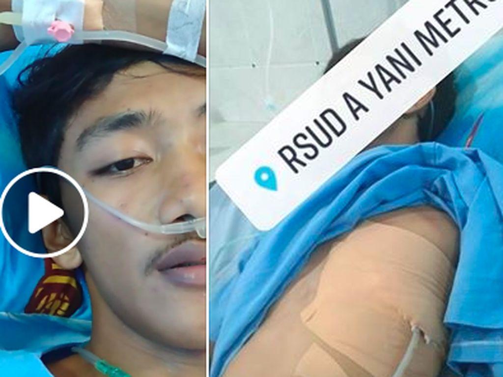 Viral Kisah Niko, Eks Perokok yang Nyaris Kehilangan Satu Paru-paru