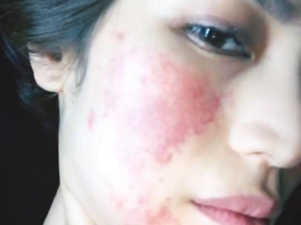Duh! Alergi Setelah Anestesi Muncul Ruam Merah Besar di Wajah Jessica Iskandar