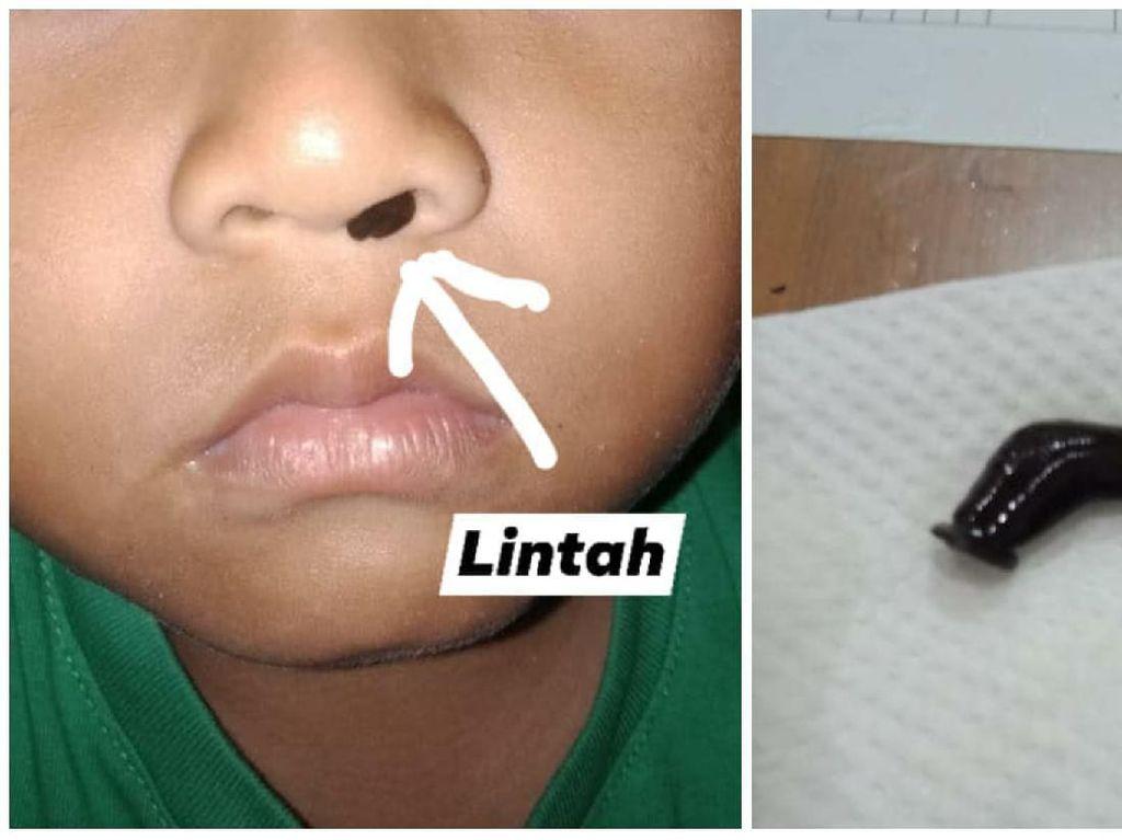 Viral Lintah Hidup di Hidung Anak, Ini Bahaya Lintah yang Tersangkut