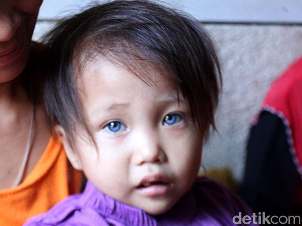 Video Amelia, Bocah yang Warna Mata dan Rambutnya Bisa Berubah-ubah