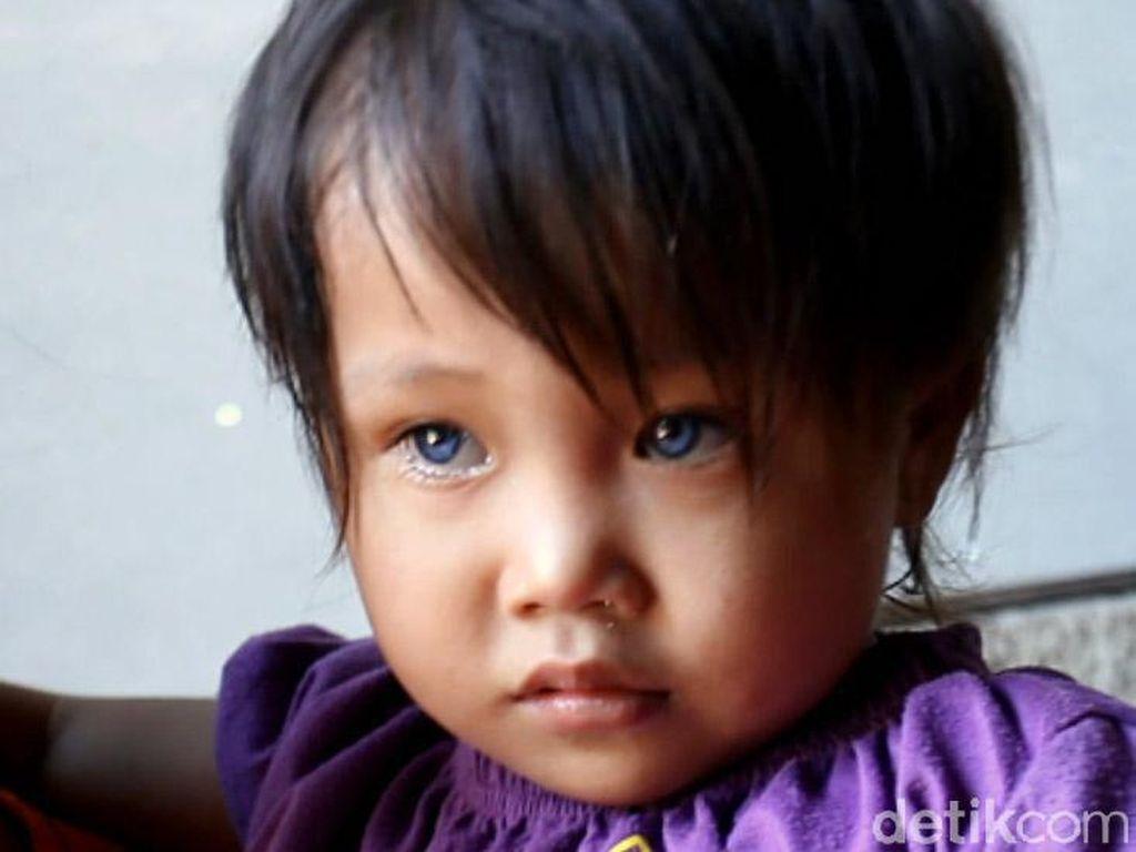 Efek Pembiasan, Bocah dengan Mata Berubah 3 Warna Termasuk Kondisi Langka