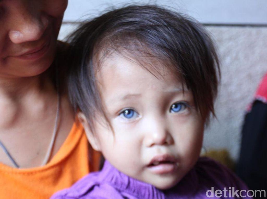 Balita di Bandung Punya Mata 3 Warna, Permanen atau Cuma Sementara?