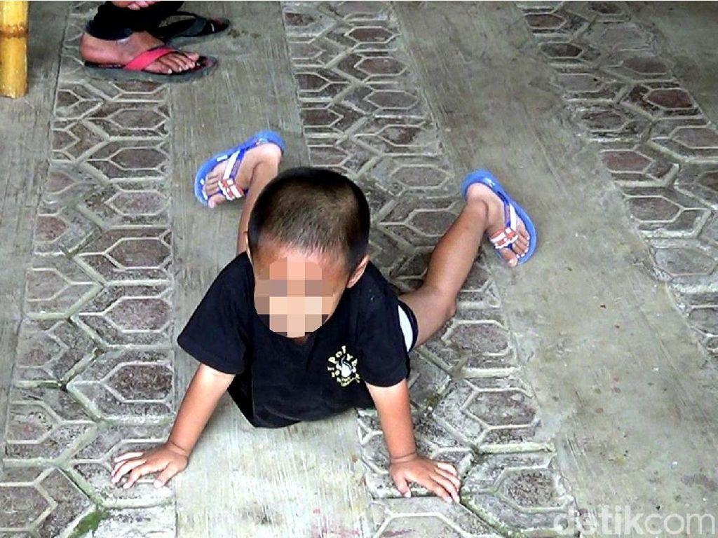 Bocah di Cianjur Terlahir Berkelamin Ganda, Ini Kemungkinan Penyebabnya