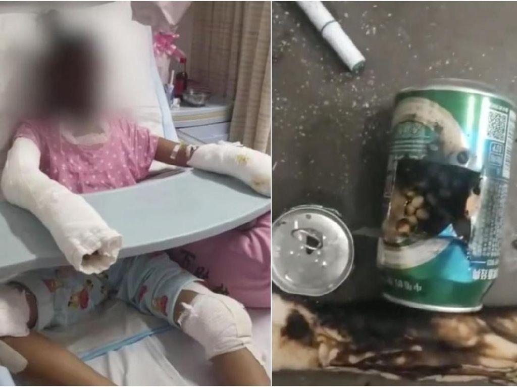 Iseng Bikin Popcorn Pakai Kaleng Soda, Remaja Ini Tewas Terbakar