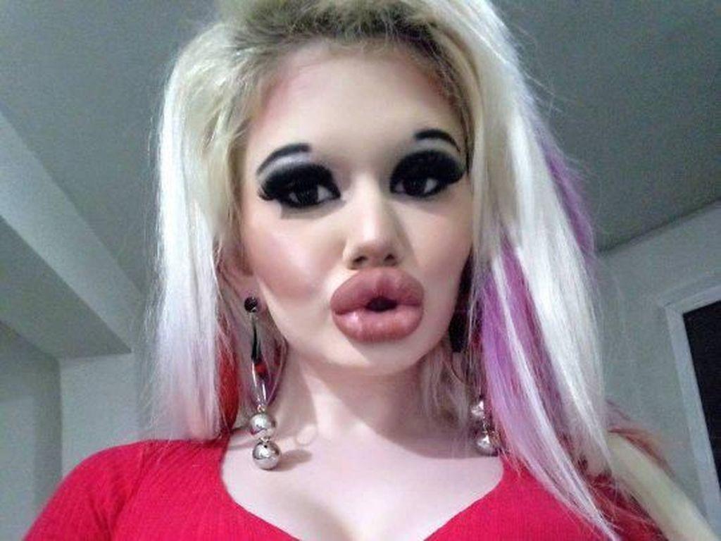 Wanita dengan Bibir Kebanyakan Filler Ini Abaikan Peringatan Dokter