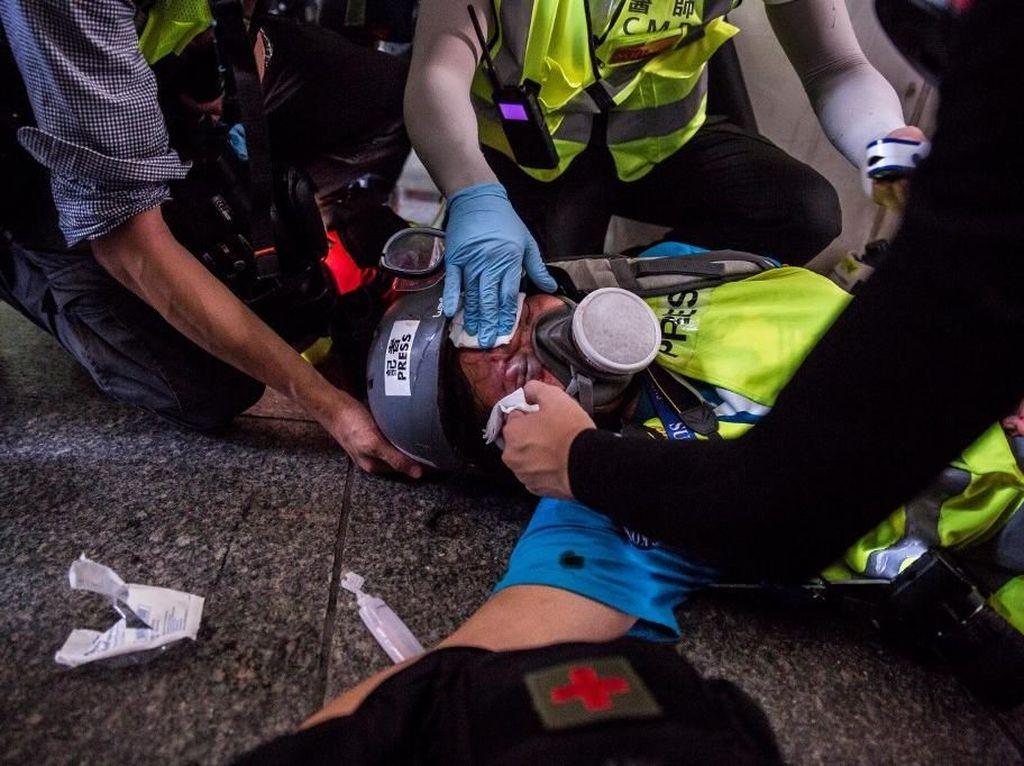 Simpati Polisi Hong Kong untuk Jurnalis Indonesia yang Kena Peluru Karet