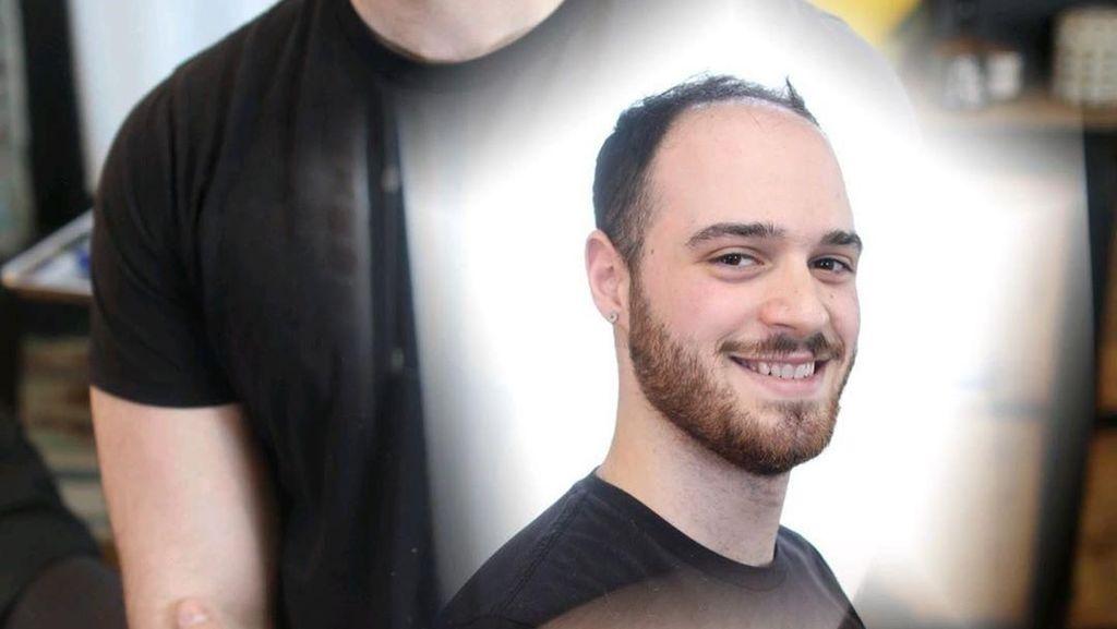 Beda Banget! Transformasi Pria-pria Botak Setelah dan Sebelum Pakai Wig