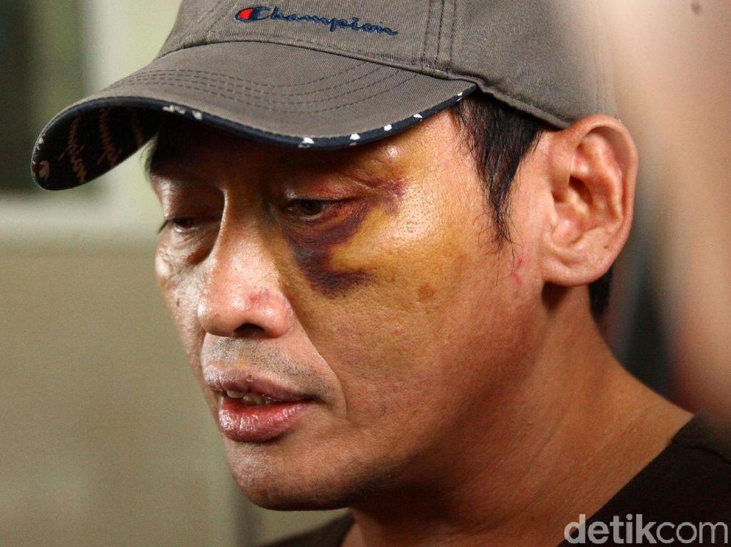 Buka-bukaan Tersangka Penganiaya Ninoy Karundeng