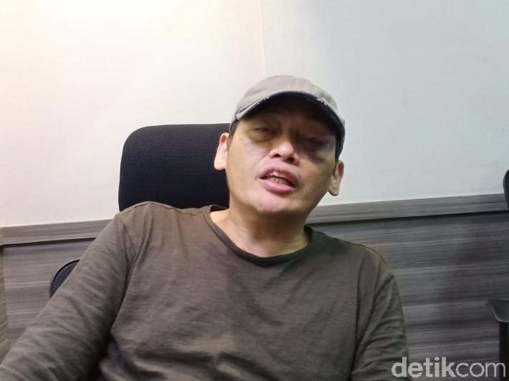 Ninoy Yakin Polisi Sesuai Prosedur Tetapkan Tersangka Penganiayanya