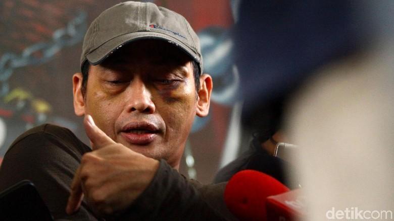 Keterangannya Diragukan PA 212, Ninoy Karundeng: Saya Kenali Muka