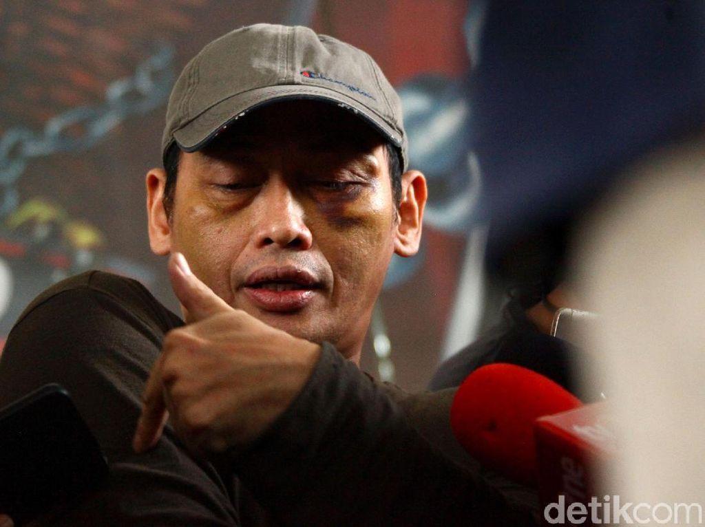 Diculik dan Dianiaya, Ninoy Karundeng: Saya Mau Dieksekusi Ala ISIS