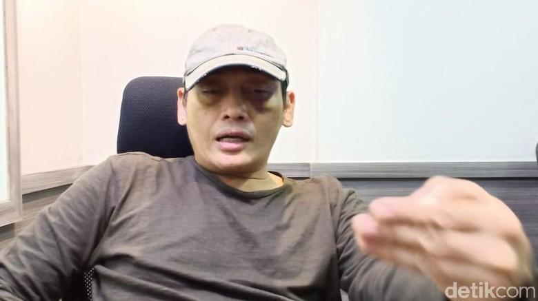 Ninoy Minta DKM Al Falah Klarifikasi Pernyataan Tak Ada Pemukulan di Masjid