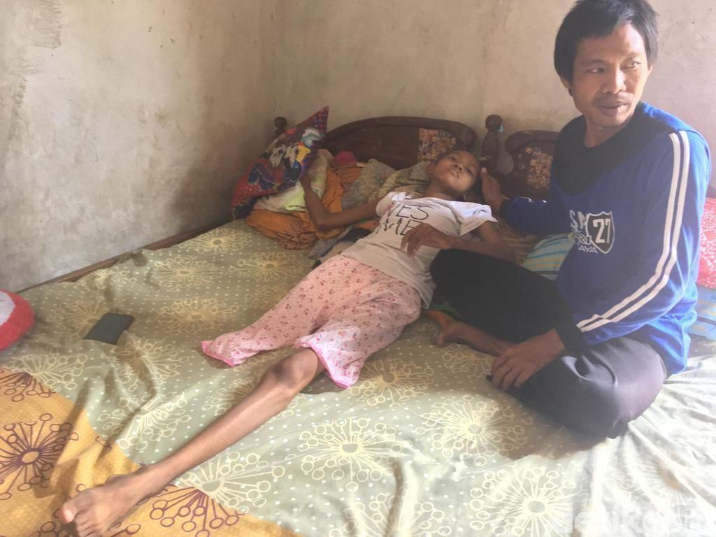 Siswi SMP Penderita Kanker Tulang Butuh Kaki Palsu, Ini Janji Pemkab Mojokerto