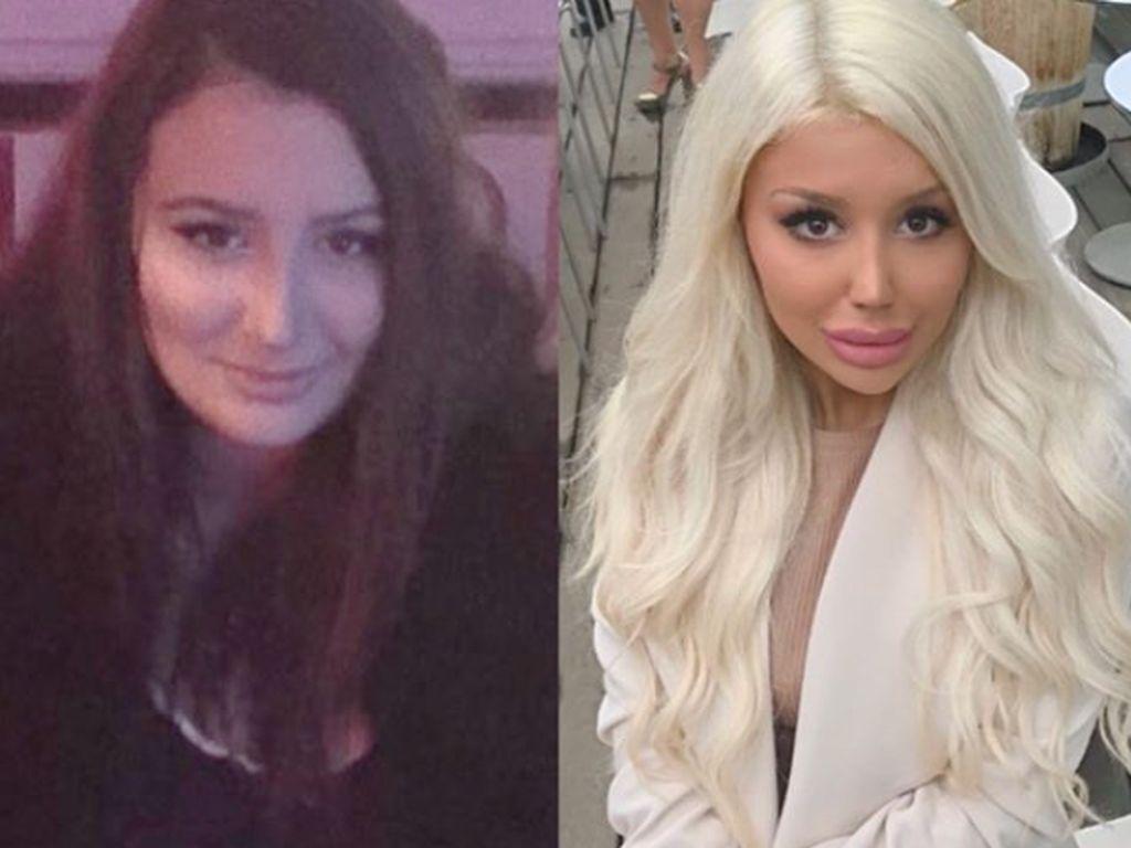 Penampilan Gadis Swedia Sebelum dan Setelah Terobsesi Jadi Barbie