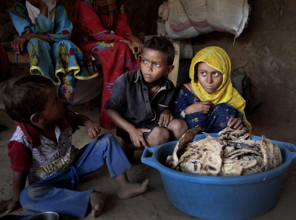 Potret Miris Anak-anak di Yaman yang Kelaparan dan Kekurangan Makanan
