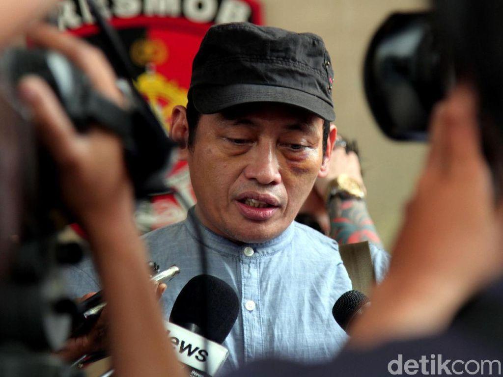 Ninoy Karundeng Jalani Pemeriksaan di Polda Metro Jaya