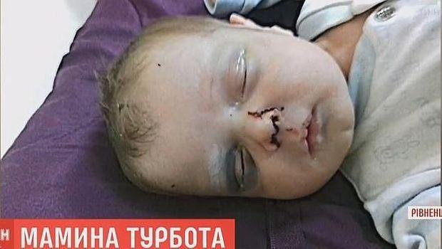 Mykyta, bayi dipukuli di Ukraina