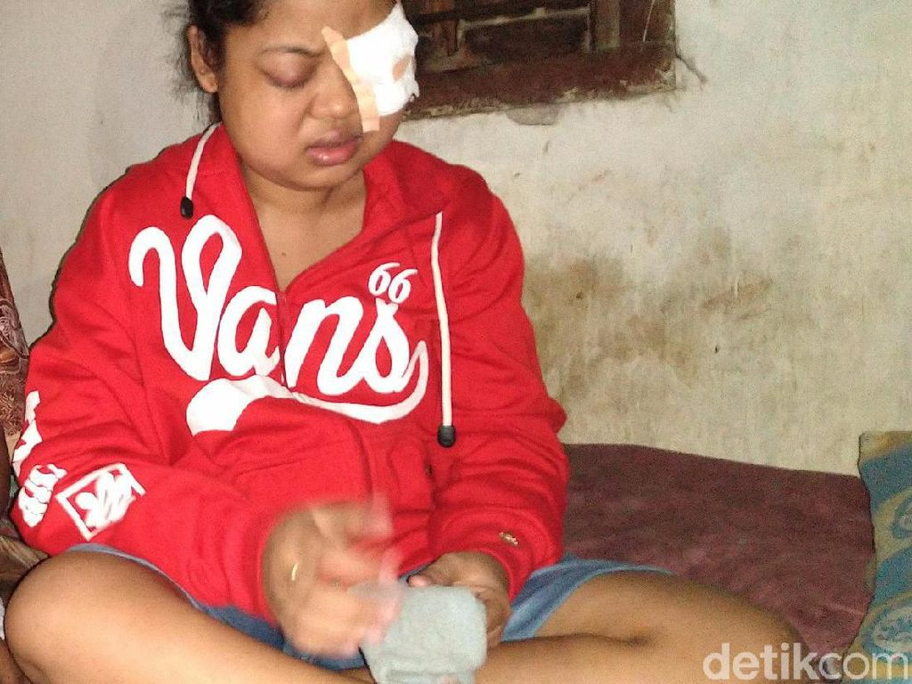 Tolong, Bola Mata Gadis di Mojokerto Ini Nyaris Lepas karena Hipertiroid