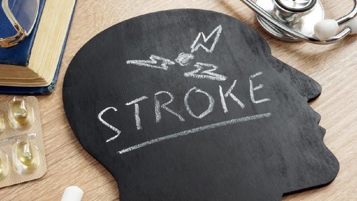 Gaya hidup tidak sehat merupakan faktor risiko stroke (Foto: iStock)