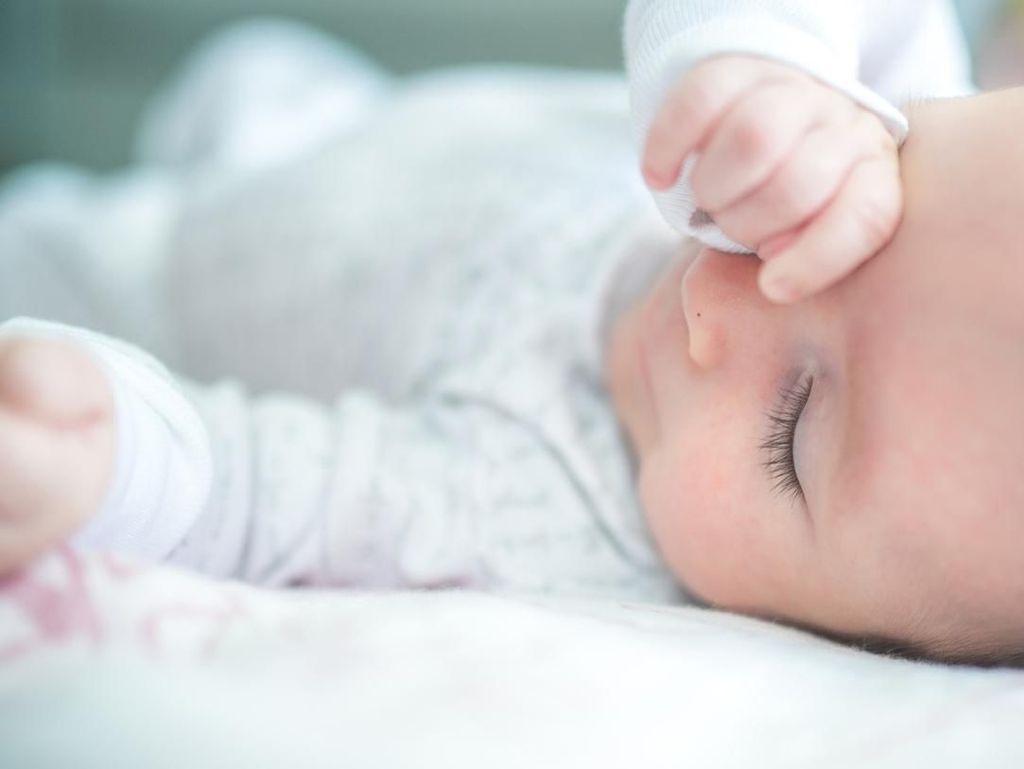 Kena Penyakit Langka, Kulit Bayi Ini Tampak Bersisik Besar