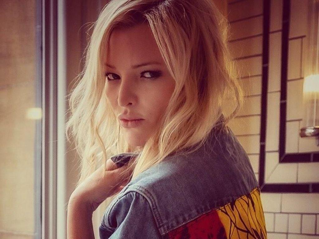 Cantiknya Model Mirip Kate Moss, Dulu Wajanya Hancur karena Kecelakaan