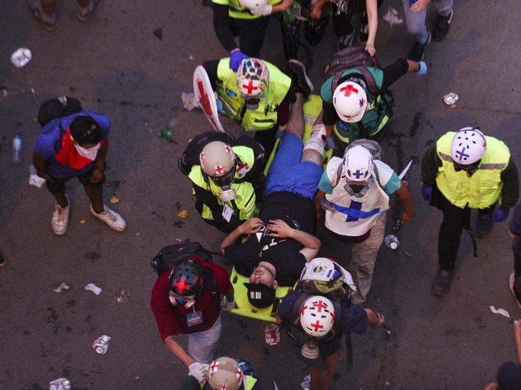 Tembakan Polisi dalam Unjuk Rasa Butakan Ratusan Demonstran Chile