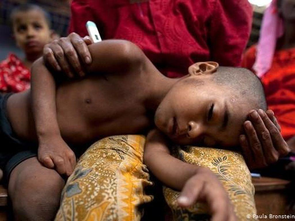 Perubahan Iklim Telah Menjadi Masalah Kesehatan Darurat