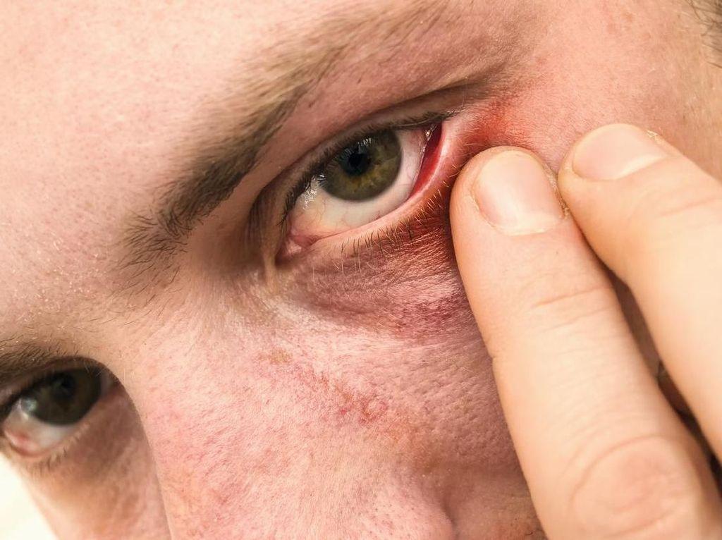 Waspada! 3 Gejala Virus Corona Telah Menginfeksi Mata