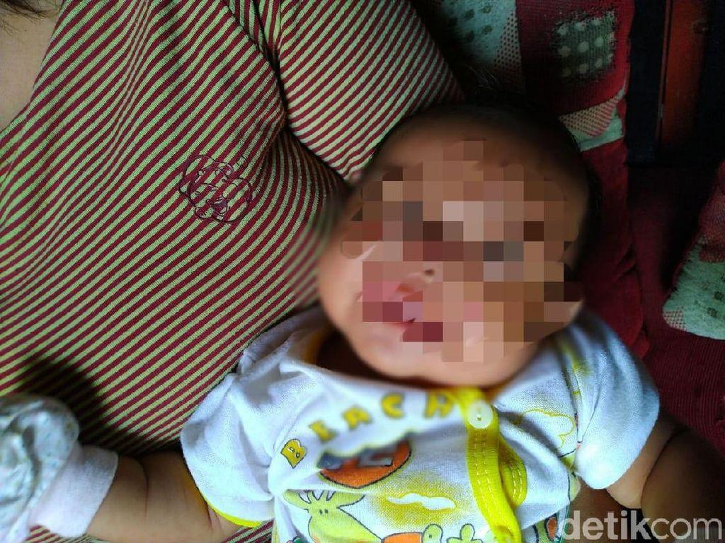 Ditinggal Ibu ke Toilet, Wajah Bayi di Bogor Terluka Digigit Tikus Besar