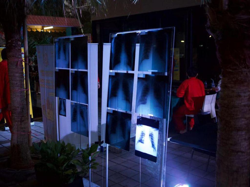 Vaper Melawan dengan Pamer Rontgen Dada, Dokter Paru Tantang CT Scan