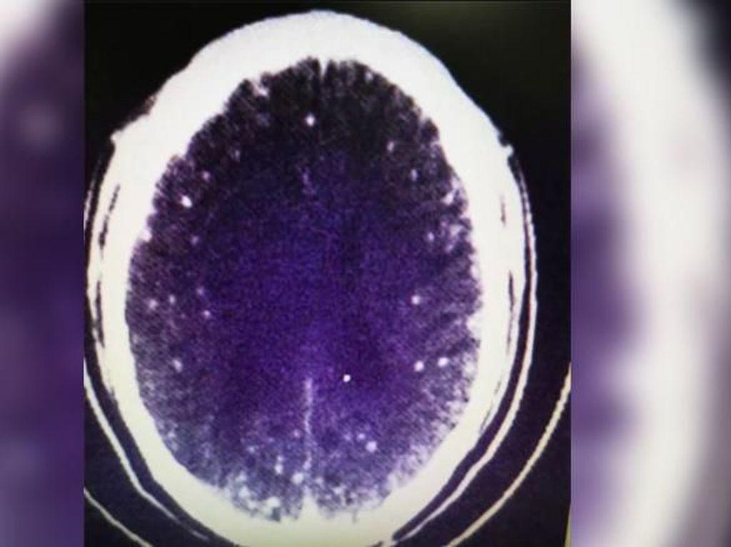 Otak Pria Ini Terinfeksi Cacing, Gara-gara Makan Daging Setengah Matang