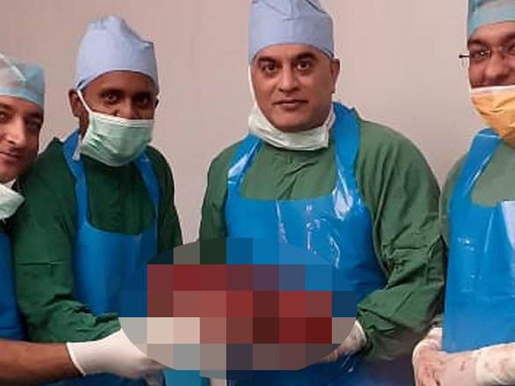 Punya Kondisi Langka, Ginjal Raksasa 7,4 Kg Diangkat dari Tubuh Pria Ini