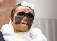 Takjub! Operasi Tanda Lahir 'Batman' di Wajah Bayi Ini Tanpa Bekas Luka