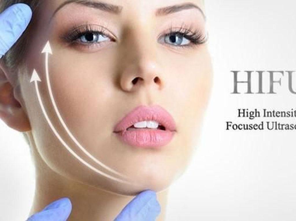 Wajah Tirus & Kencang, Face Lift Tanpa Operasi dengan Teknologi HIFU