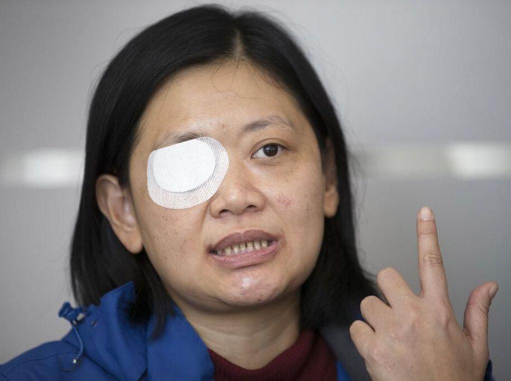 Cerita Jurnalis Indonesia, Buta Ditembak Polisi Hong Kong