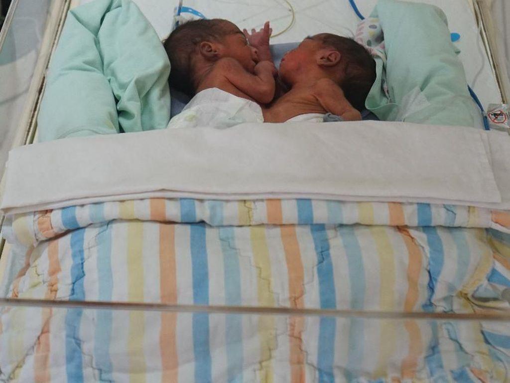 Lengket Perut dan Dada, Bayi Kembar Siam di Medan Dalam Keadaan Sehat