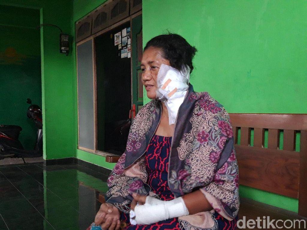 Polisi Buru Penyiram Air Keras ke Nenek di Boyolali