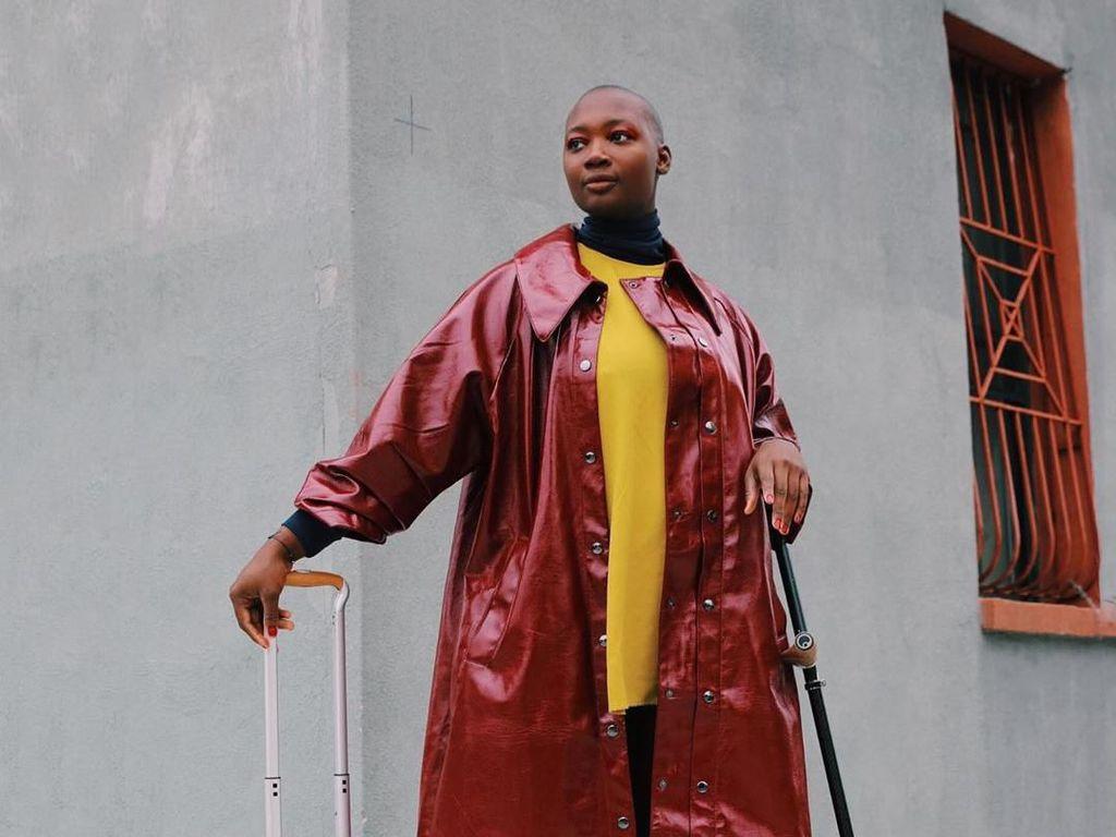 Fakta Mama Cax, Model Tanpa Kaki yang Meninggal Karena Kanker Tulang