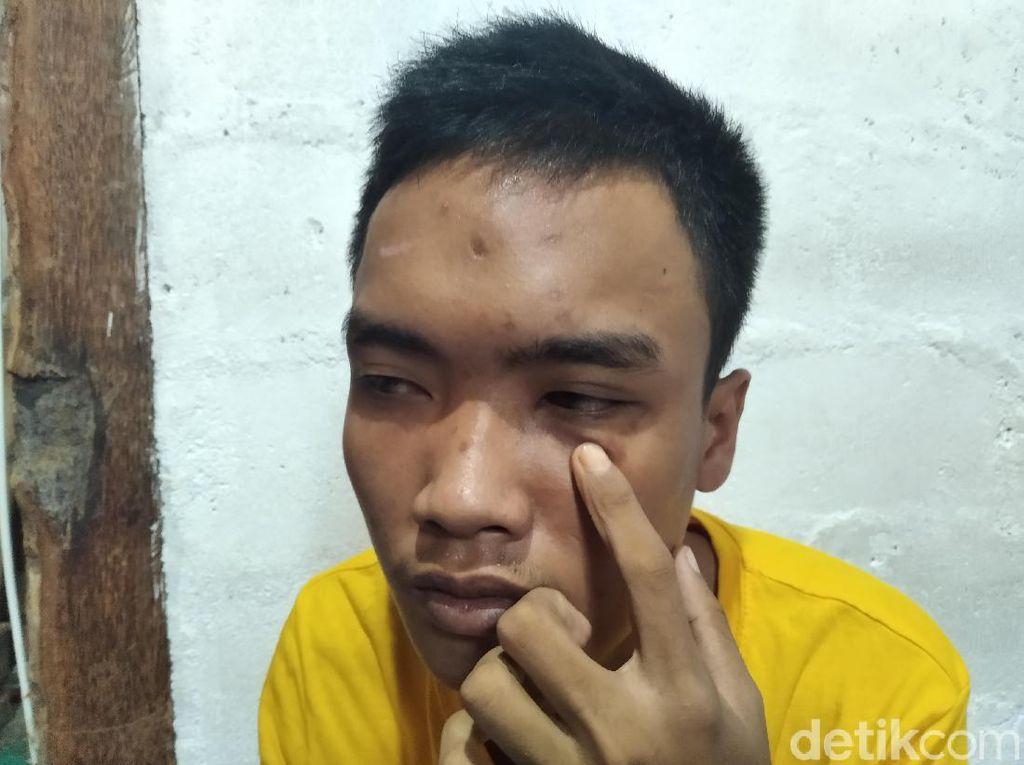 Ngaku Jadi Korban Salah Tangkap, Mahasiswa di Yogya Lapor ke Polda